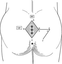 Kıl Dönmesi Limberg flebin şematik görünümü (A)